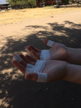 bethanys-hands-after-the-first-day
